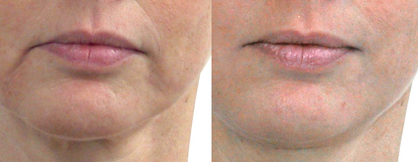 Lips_43-ans_12-sessions_Endermolift